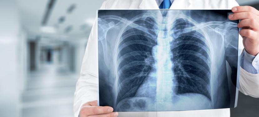 Ville de Créteil - Tuberculose pulmonaire